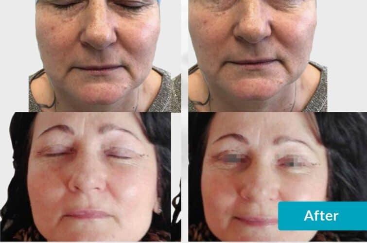 lifting twarzy - facelifting