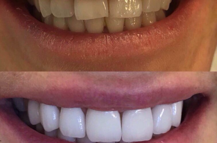 stomatologia - hollywood smile