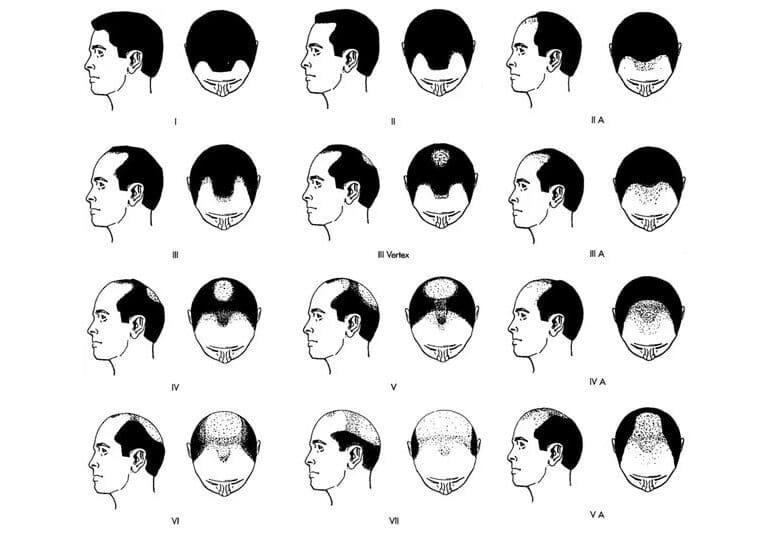 Skala łysienia Norwooda