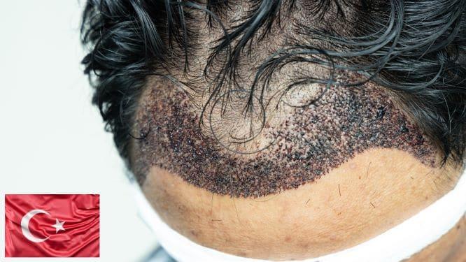 Przeszczep włosów w Turcji