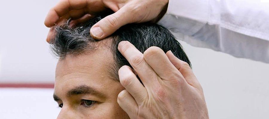 Przeszczep włosów z Meditravel
