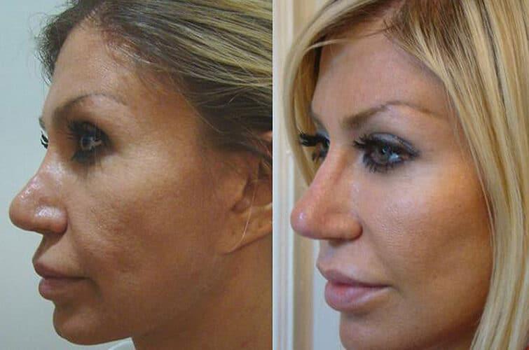 Faceliftig przed i po
