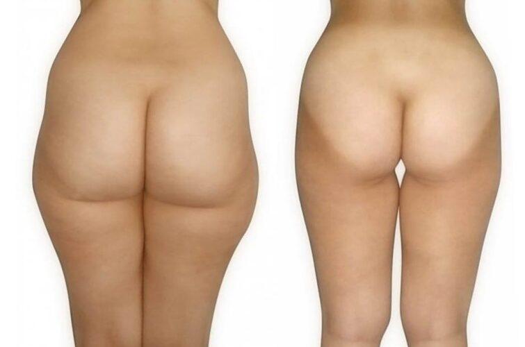 Liposukcja - przed i po