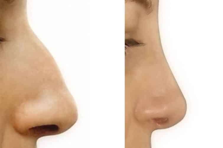 operacja nosa - przed i po