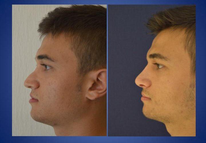 operacja nosa - rynoplastyka