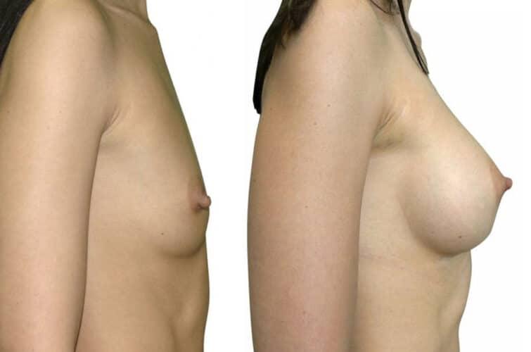 Operacja powiększanie piersi