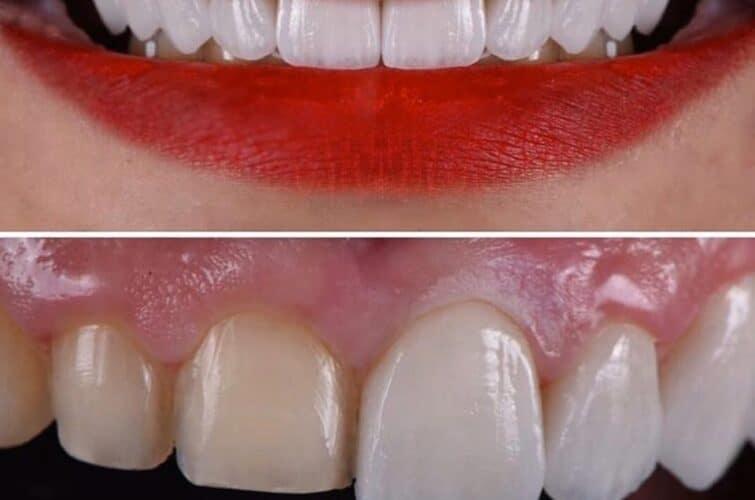 stomatologia przed i po